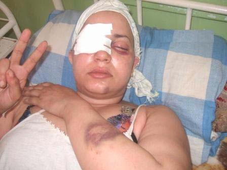 Sultana Jaya, torturada por las fuerzas represoras marroquíes